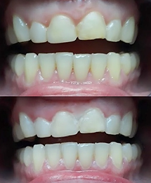 Teeth Whitening befor & after for teeth with multiple types of stains