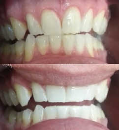 Teeth Whitening Before & After results on typical faded teeth
