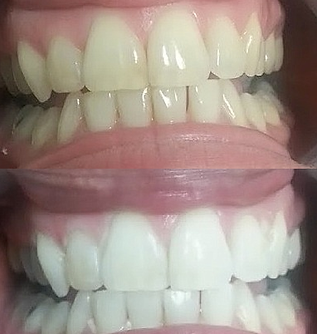 Teeth Whitening Before & After photo