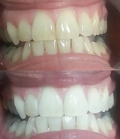 Teeth Whitening resuls on commonly stained teeth whitening at New Wave in Lehigh Valley PA