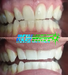 New Wave Teeth Whitening Before & After