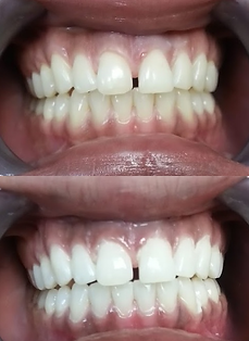 Teeth Whitening Before & After Results at New Wave for commonly faded teeth