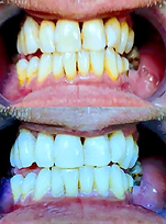 Teeth Whitening results on badly stained teeth