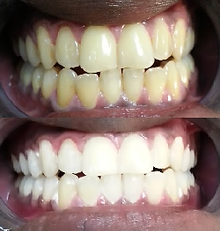 Teeth Whitening results on typically yellowed teeth