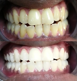 Teeth Whitening Before & After resuls on commonly stained teeth