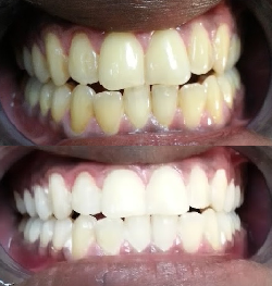 Teeth Whitening Before & After results on typically yellowed teeth