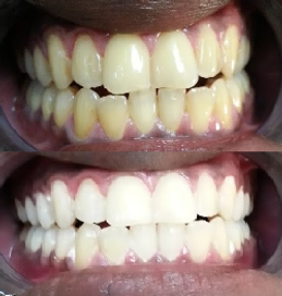 Teeth Whitening results at New Wave's clinic