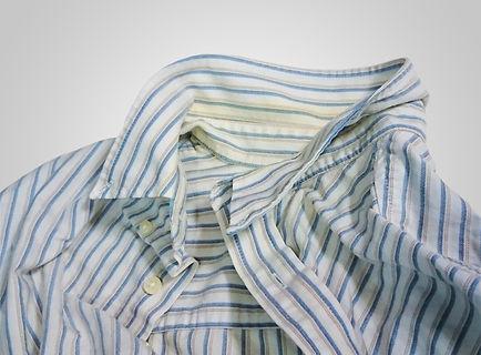 クリーニング後、着てないのに黄ばみが出てきた事例イメージ画像