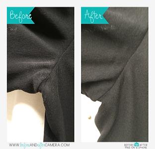 脇の脱色 染色補正 before&after