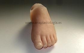 reconstrucción dedo mediante protesis