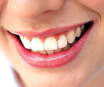 reconstrucción dental mediante protesis