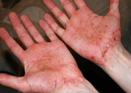Dyshidrotic Eczema before Herbs