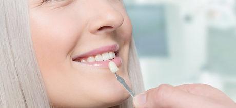 dental-veneers2-min-925x425.jpg