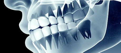 airdrie-dental-digital-xray.jpg