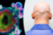 baldness-cure-671135.jpg