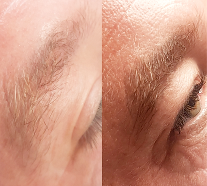 Male Brows by Manderville Aesthetics