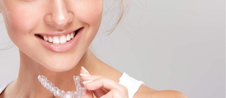 Ortodoncia Invisible, los alineadores transparentes para mejorar tu sonrisa.