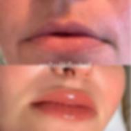 Permanent Lip Blush toronto.png
