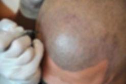 toronto-scalp-micropigmentation.jpg