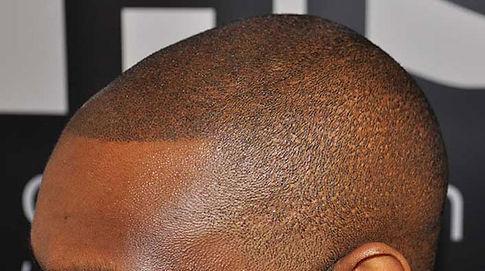 scalp micropigmentation