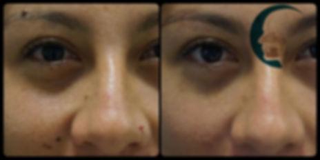 Lunares y verrugas