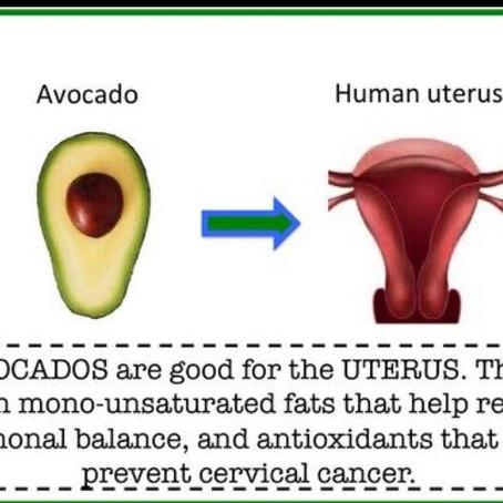 Avocados 🥑 💚