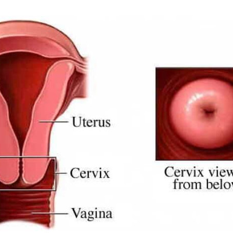 The Complexity of the Cervix 🍩