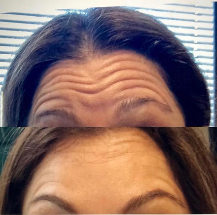 Before and After one area glabella 11's.