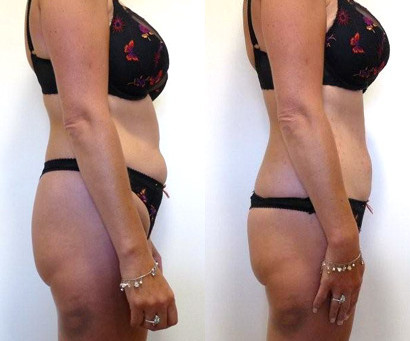 Fat Reduction: Non Surgical.