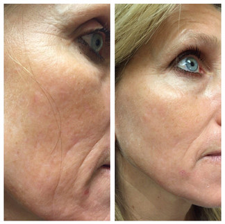 Chemical peel series before and after