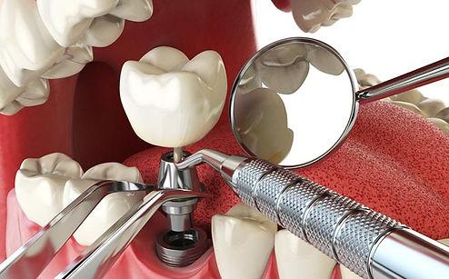 novye-tehnologii-v-stomatologii_implant.