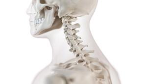 頸椎椎間板ヘルニアの予後と後遺症