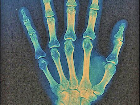 מניעת כאבים במפרק כף היד בתרגול יוגה