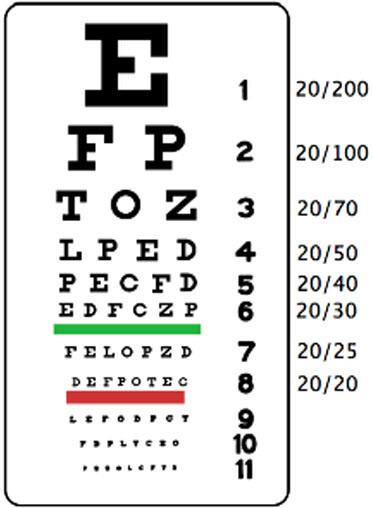 The Snellen Eye Chart