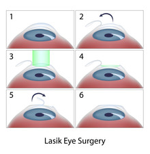 Am I a good candidate for LASIK?? (4 ways to tell)
