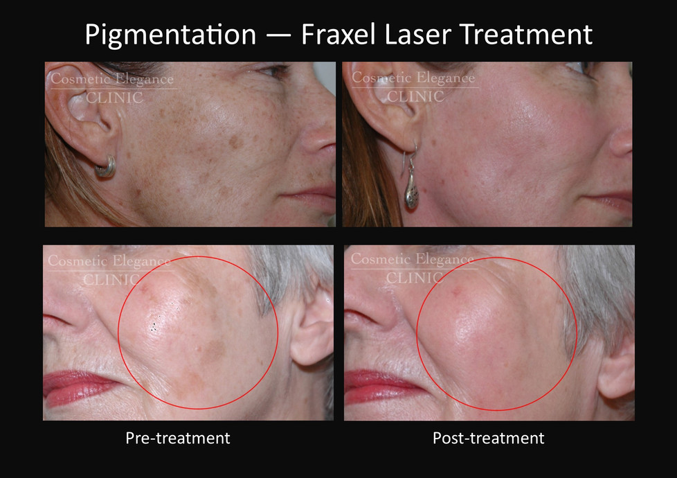 Fraxel pigmentation treatment Toowoomba