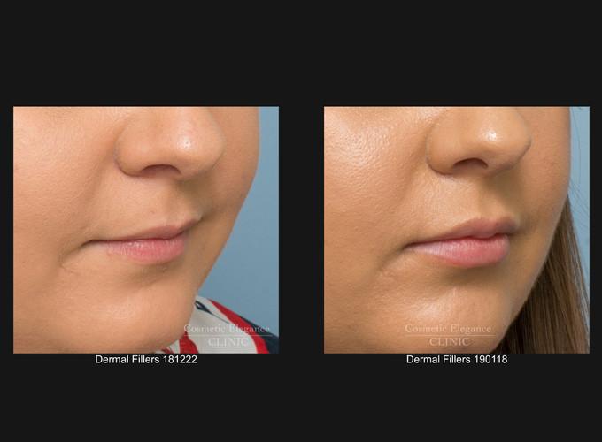 Lip augmentation Toowoomba