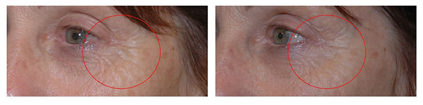 cosmetic injectables Toowoomba