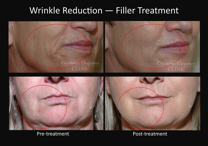 Dermal filler wrinkle reduction Toowoomba