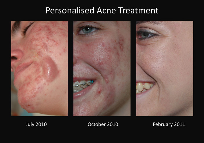 Toowoomba acne treatment