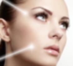 Laser facial Toowoomba
