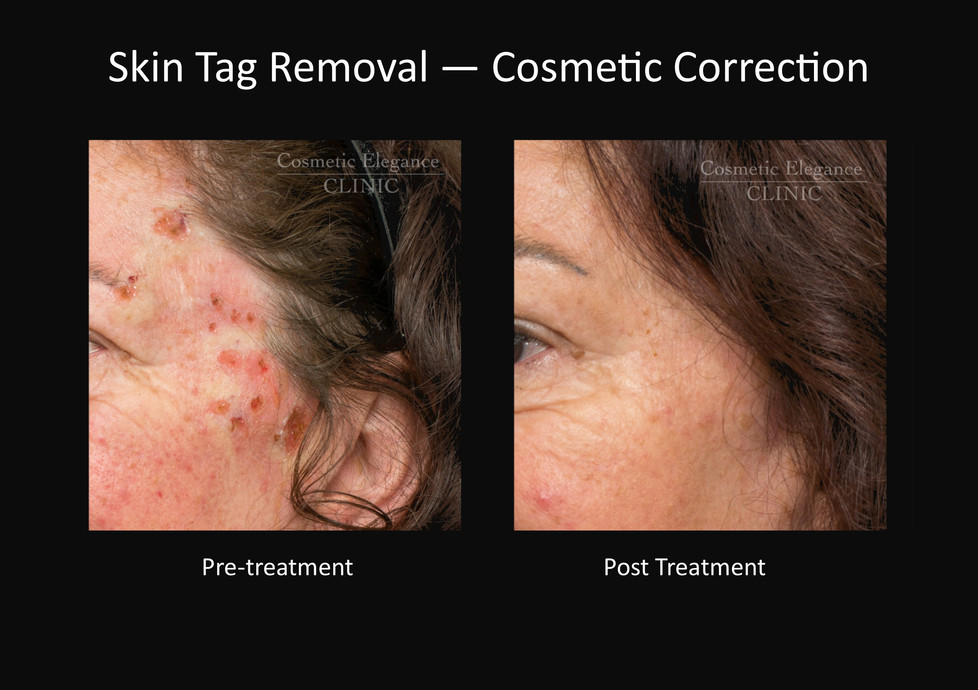 Skin Tag Removal Toowoomba