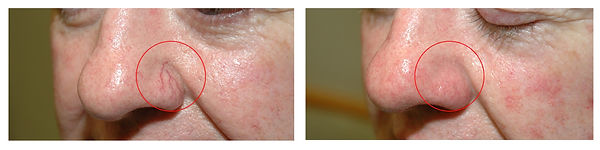 spider vein treatment Toowoomba