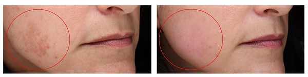 pigmentation treatment Toowoomba