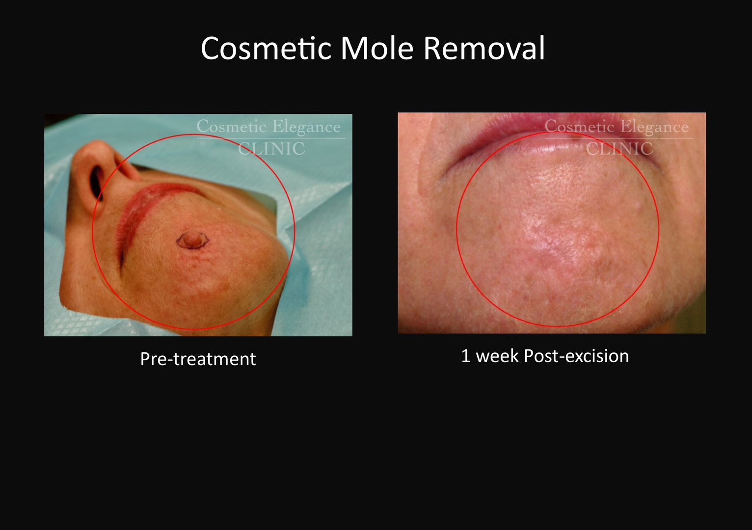 Cosmetic Mole Removal Toowoomba