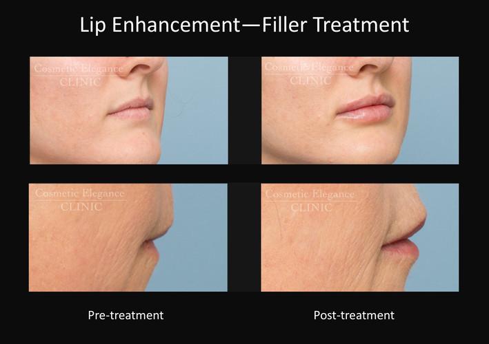Dermal filler lip enhancement Toowoomba