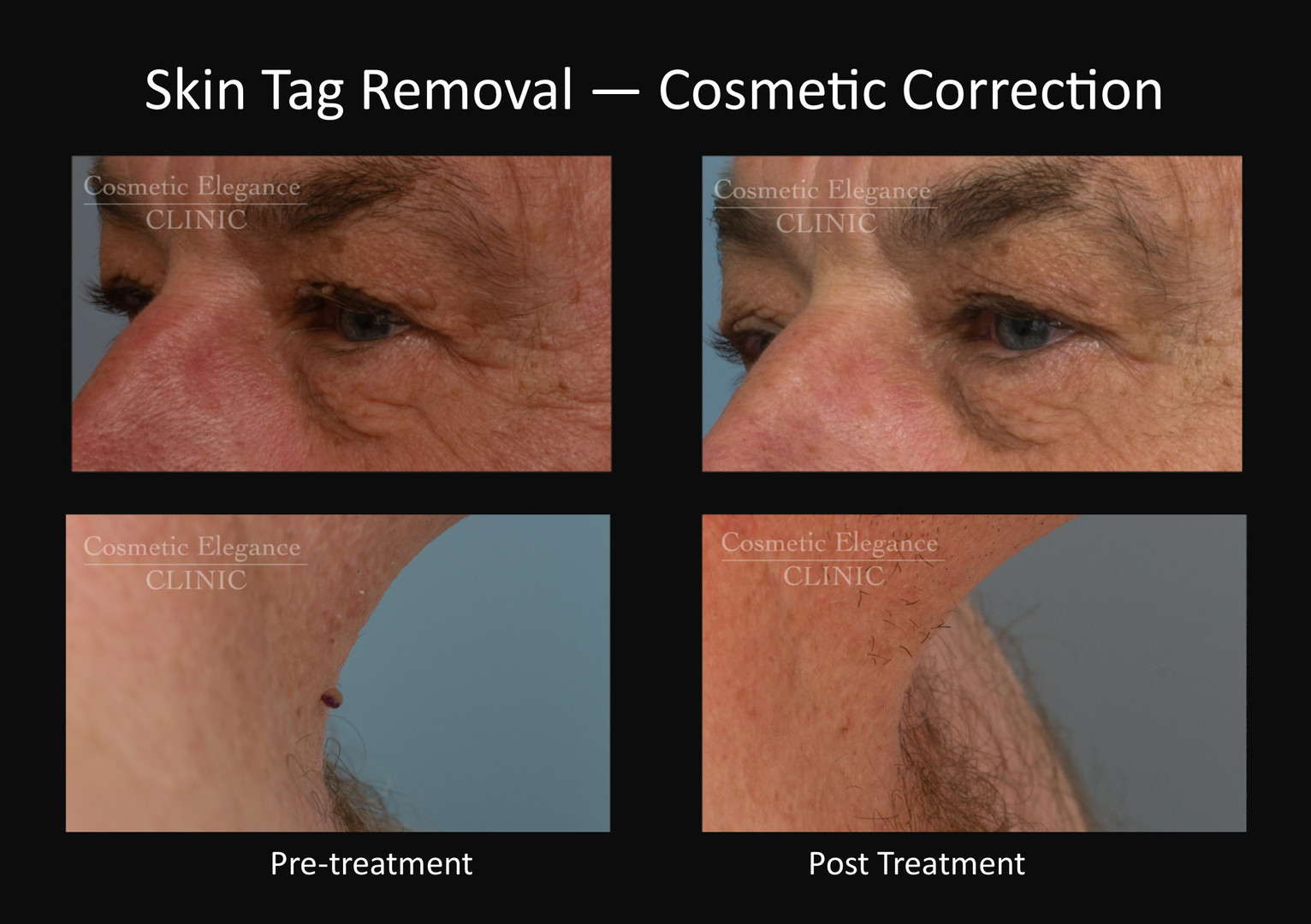 Cosmetic Skin Tag Removal Toowoomba