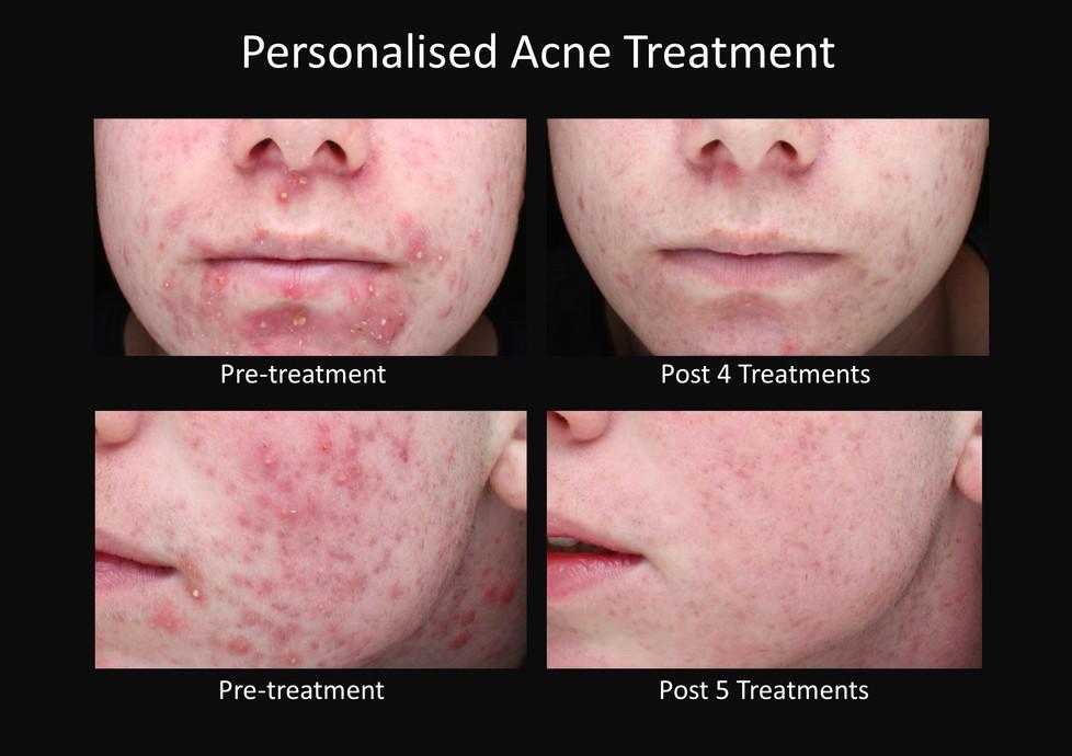 Acne treatment Toowoomba
