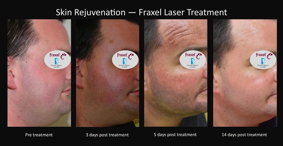 Laser facial resurfacing Toowoomba