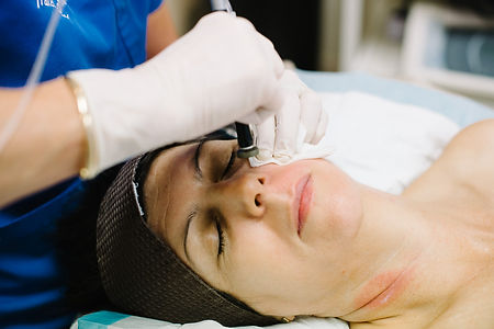 microhydrabrasion microdermabrasion